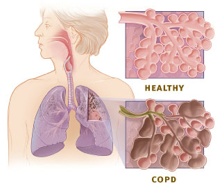 https://pollutionfree.files.wordpress.com/2010/11/copd_versus_healthy_lung.jpg