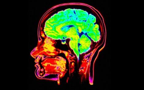 brain_2502748b